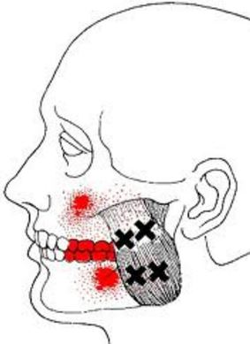 Jaw trigger point muscles.jpg